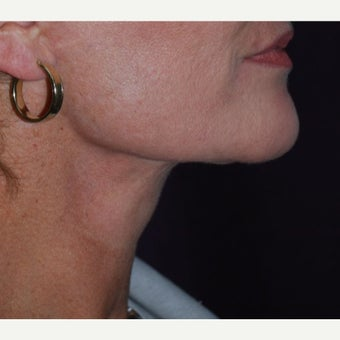 45-54 year old woman treated with Neck Lift after 1673984