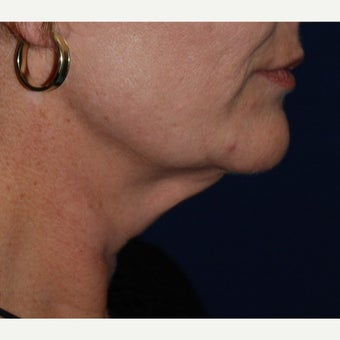 45-54 year old woman treated with Neck Lift before 1673984