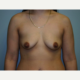 Breast Augmentation before 3560688