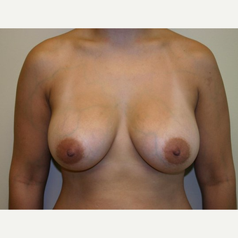 Breast Augmentation after 3560688