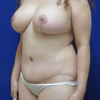 44 y.o. female–Mommy Makeover, Breast Lift w/ Silicone Style 15 421cc & Abdominoplasty (Tummy Tuck) after 3089190