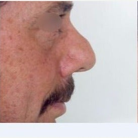 45-54 year old man treated with Nose Surgery