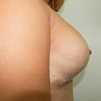 35-44 year old woman treated with Breast Implants after 3723983