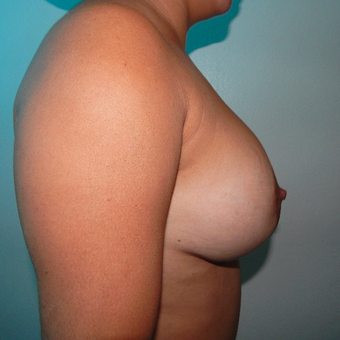 35-44 year old woman treated with Breast Implants before 3723983