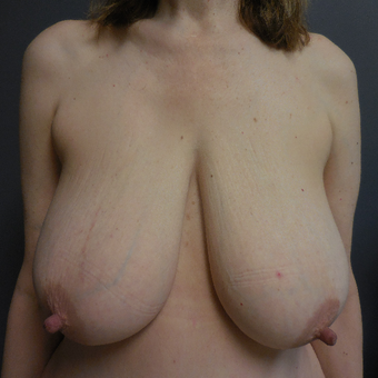 45-54 year old woman treated with Breast Reduction before 3075986