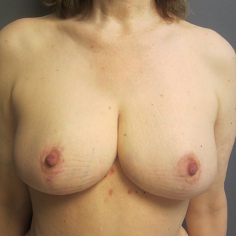 45-54 year old woman treated with Breast Reduction after 3075986