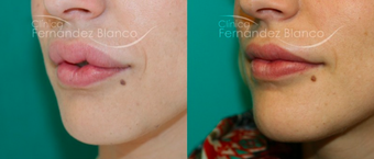25-34 year old woman treated with Lip Reduction before 2403739