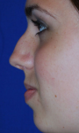 Rhinoplasty before 605531