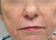 55-64 year old woman treated with ProFractional Laser after 3032066