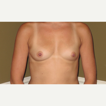 25-34 year old woman treated with Breast Augmentation before 3621122