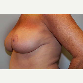 55-64 year old woman treated with Breast Reduction after 3803211