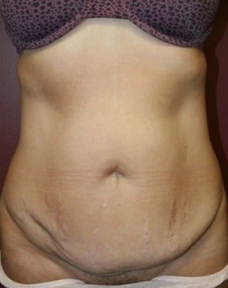 45-54 year old woman treated with Tummy Tuck before 1720404