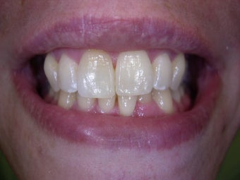 Single discolored front tooth bleaching