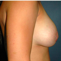 26 year old woman treated with Breast Lift after 3666152