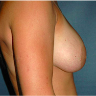 26 year old woman treated with Breast Lift before 3666152