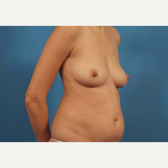 25-34 year old woman treated with Breast Augmentation before 3787142