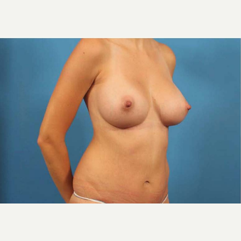 25-34 year old woman treated with Breast Augmentation after 3787142