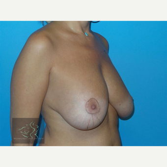 45-54 year old woman treated with Breast Implants before 3591245