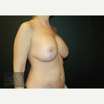 45-54 year old woman treated with Breast Implants after 3591245