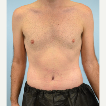 32 year old man treated with Tummy Tuck after 3432253