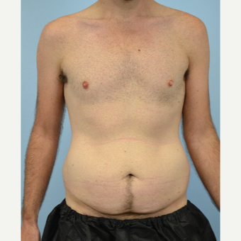 32 year old man treated with Tummy Tuck before 3432253