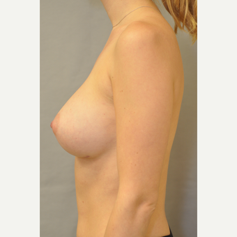25-34 year old woman treated with Breast Augmentation before 3412446