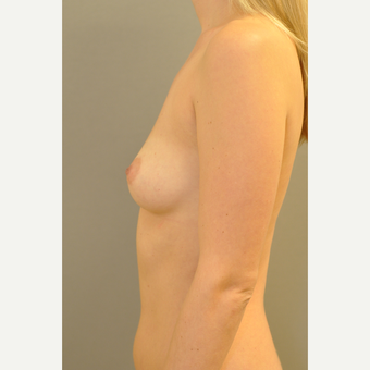 25-34 year old woman treated with Breast Augmentation after 3412446