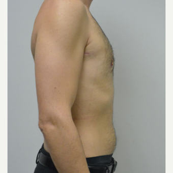 25-34 year old man treated with Male Breast Reduction after 3683768