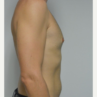 25-34 year old man treated with Male Breast Reduction before 3683768
