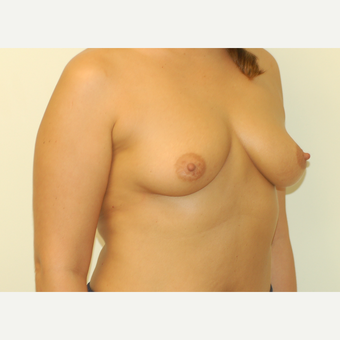 25-34 year old woman treated with Breast Implants before 3032411