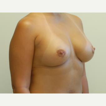 25-34 year old woman treated with Breast Implants after 3032411