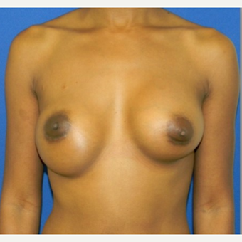 25-34 year old woman treated with breast implant Revision before 3408431