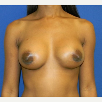 25-34 year old woman treated with breast implant Revision after 3408431