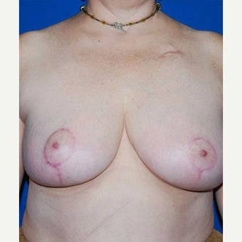 55-64 year old woman treated with Breast Reduction after 1874406
