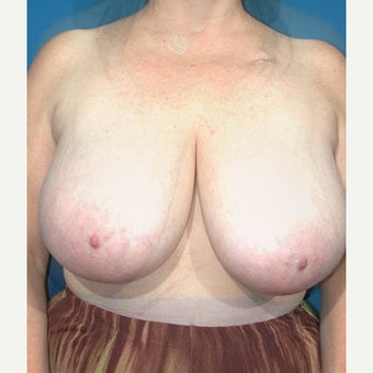 55-64 year old woman treated with Breast Reduction before 1874406