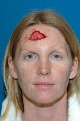 Forhead reconstruction after Mohs surgery before 665299