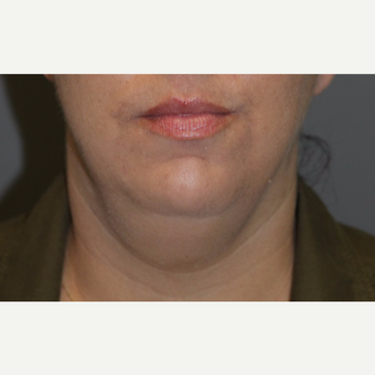 35-44 year old woman treated with Kybella before 3147388