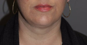 35-44 year old woman treated with Kybella after 3147388