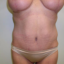 45-54 year old woman treated with Tummy Tuck after 3180605