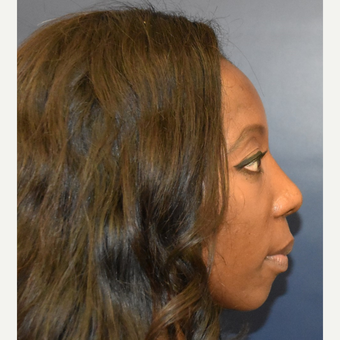 35-44 year old woman treated with Rhinoplasty after 3288993