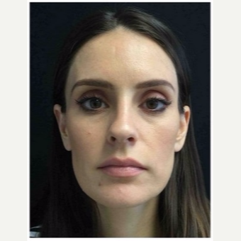 35-44 year old woman treated with Rhinoplasty before 3046985