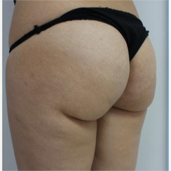 18-24 year old woman treated with Brazilian Butt Lift before 3184634