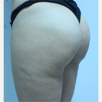 18-24 year old woman treated with Brazilian Butt Lift after 3184634