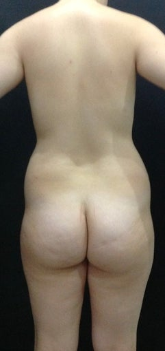 23 year old woman treated with Liposuction 1614038