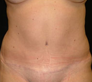 35-44 year old woman treated with Tummy Tuck after 2285556