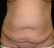 35-44 year old woman treated with Tummy Tuck before 2285556