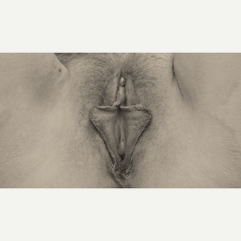 Labiaplasty: Clitoral Hood Reconstruction, Circumferential Labia Minora U-plasty Reduction