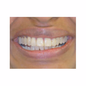 Gaps between teeth treated with Clear Braces after 3696122