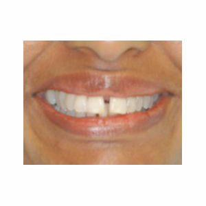 Gaps between teeth treated with Clear Braces before 3696122