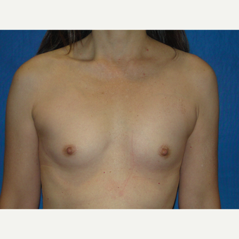 Breast Augmentation with 300 cc Silicone before 3776091